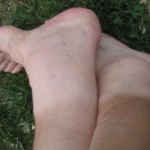 dicke Füße vom Radeln